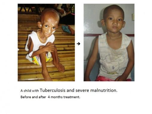 tuberculosis-myanmar